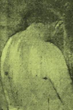 Ferimentos de Antonio Silvino após a sua captura.